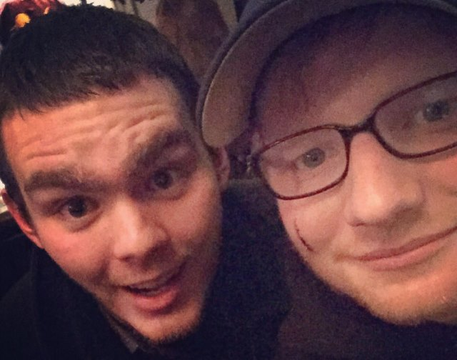 Ed-Sheeran-Cut-Gesicht